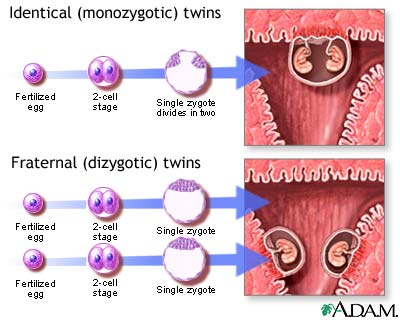 Monozygotic and dizygotic twins